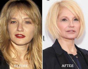 Ellen-Barkin-Plastic-Surgery